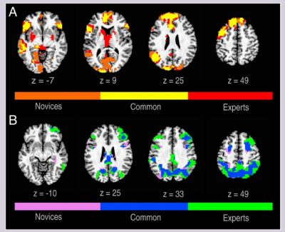 fMRI creativity novice vs expert